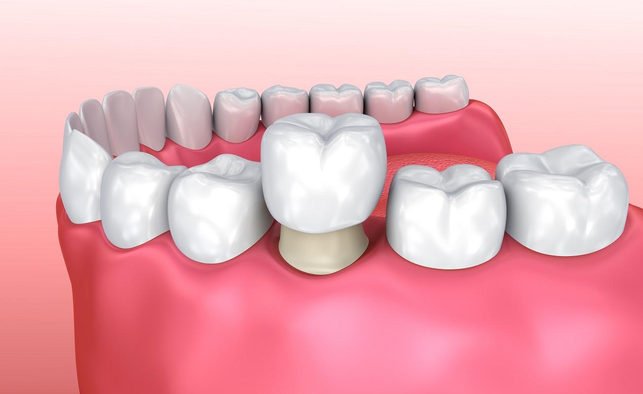 korony zębowe kielce