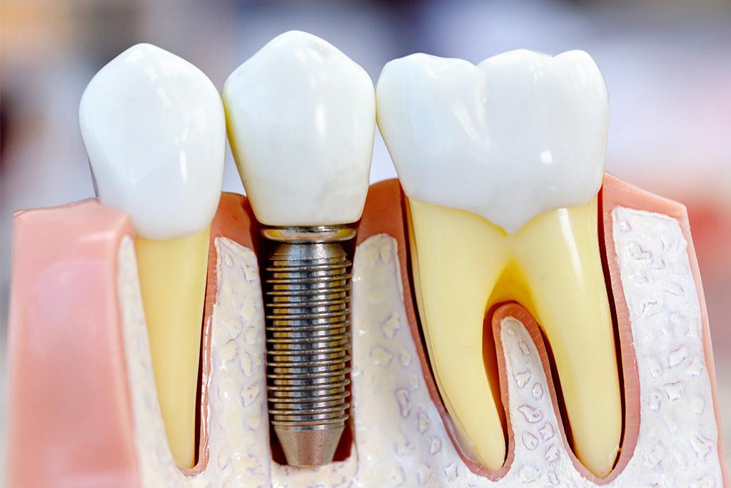 implanty zębowe kielce